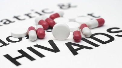 The Impact of HIV and AIDS on Small Business